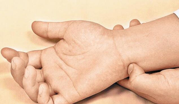 How to maintain the efficiency of acupuncture?