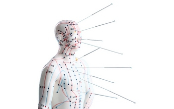 Which situations shouldn't acupuncture?