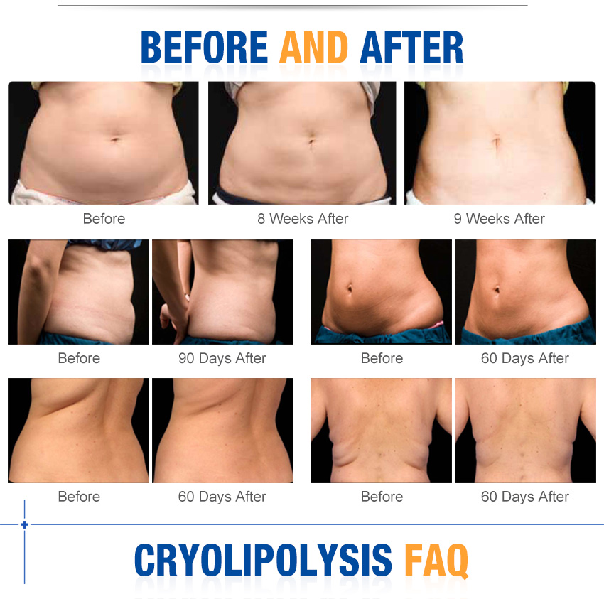 portable cryolipolysis machine effect