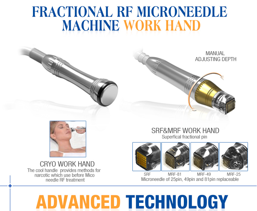 fractional rf for acne scars work head