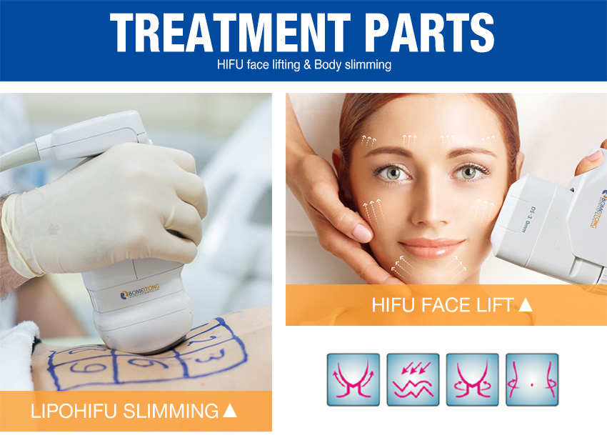 lipo hifu treatment parts