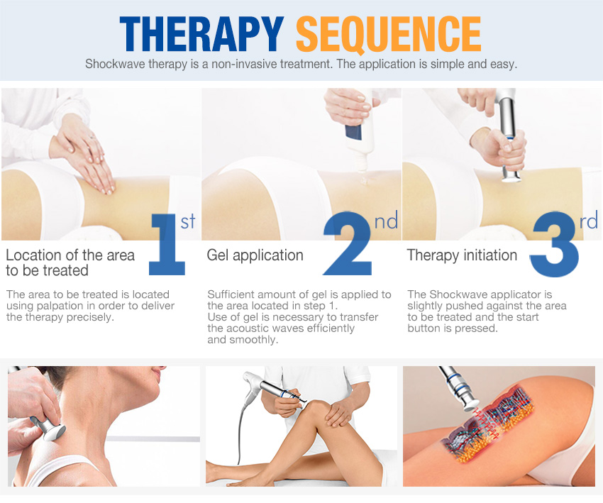 shockwave therapy machine therapy sequence