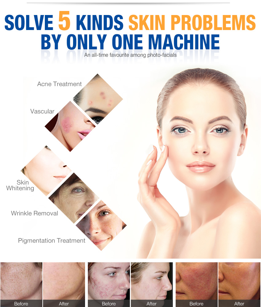 ipl hair removal machine good results